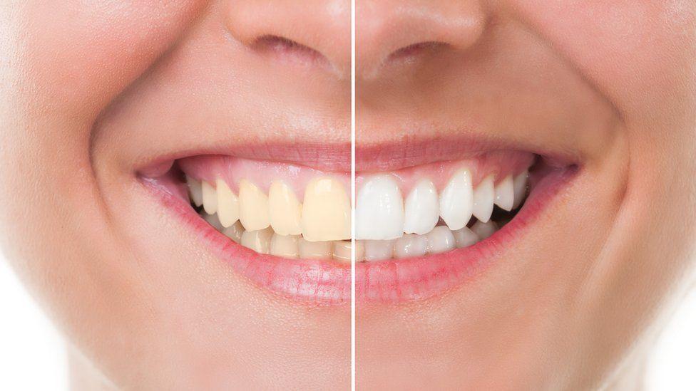 Teeth Whitening Blog