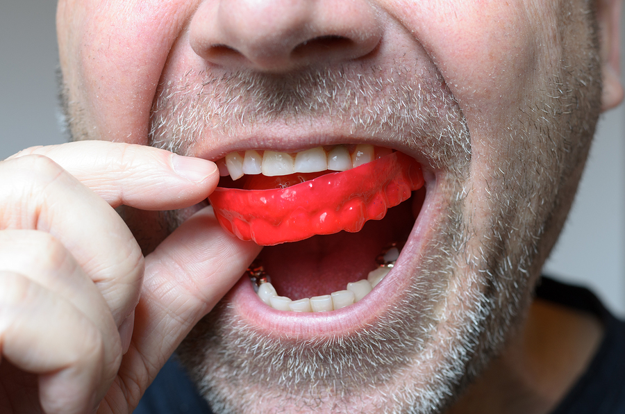 Man Placing A Red Bite Plate In His Mouth