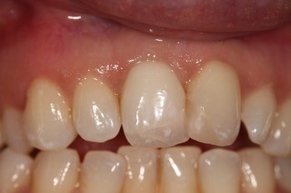 Internal Whitening after 2