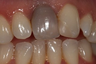 Internal Whitening before 2