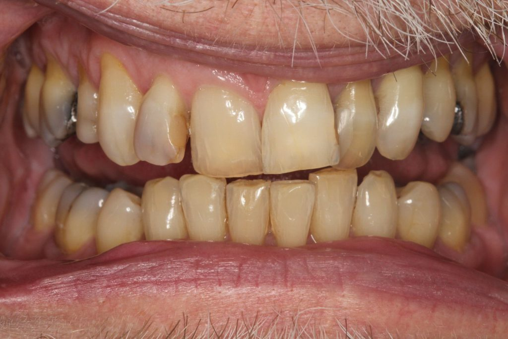 Internal whitening after 1