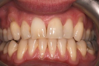 Internal whitening after 3
