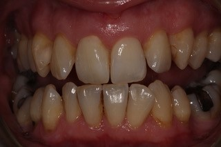 Internal whitening after 4