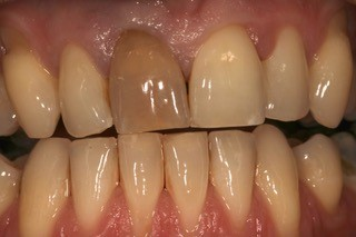 Internal whitening before 3
