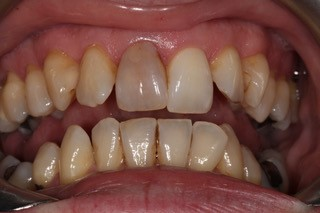 Internal whitening before 4